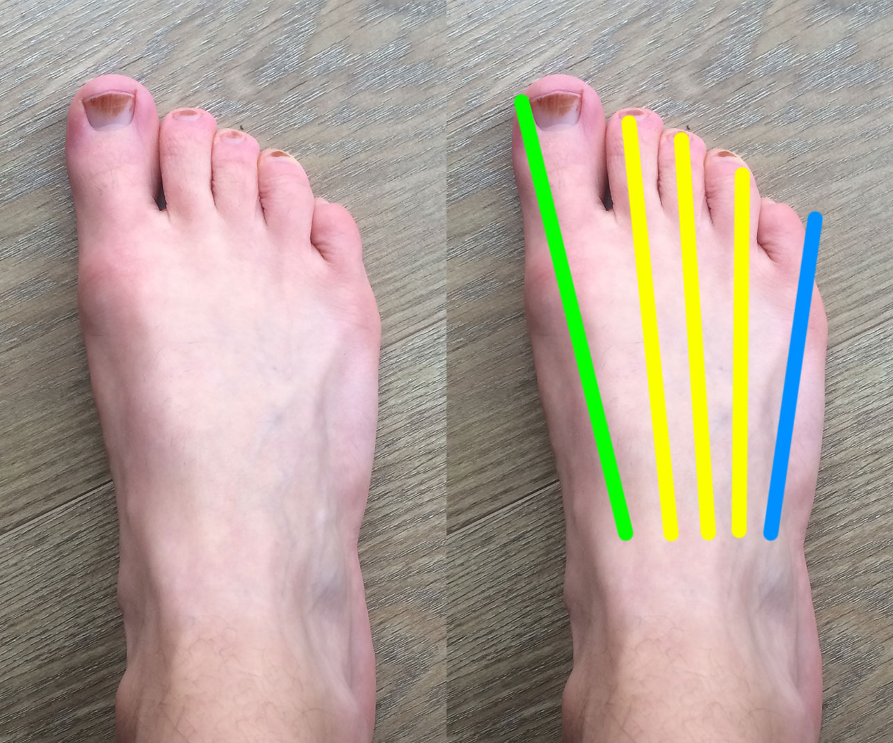 My toes and correct bones diagram